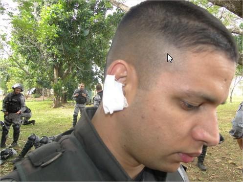 PM Ferido - correiodoestado.com.br